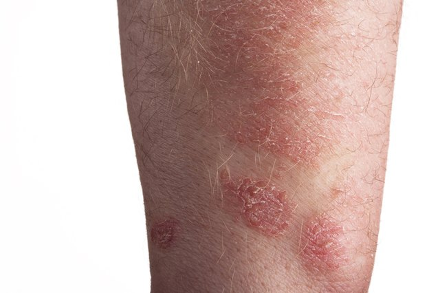 Does B12 Help Psoriasis?