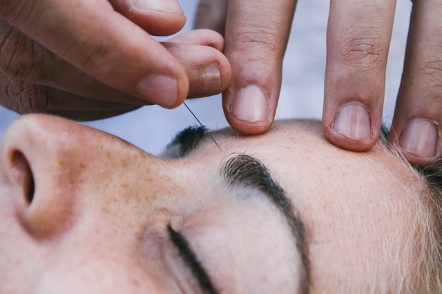 Physiotherapist doing acupuncture on a patient brow