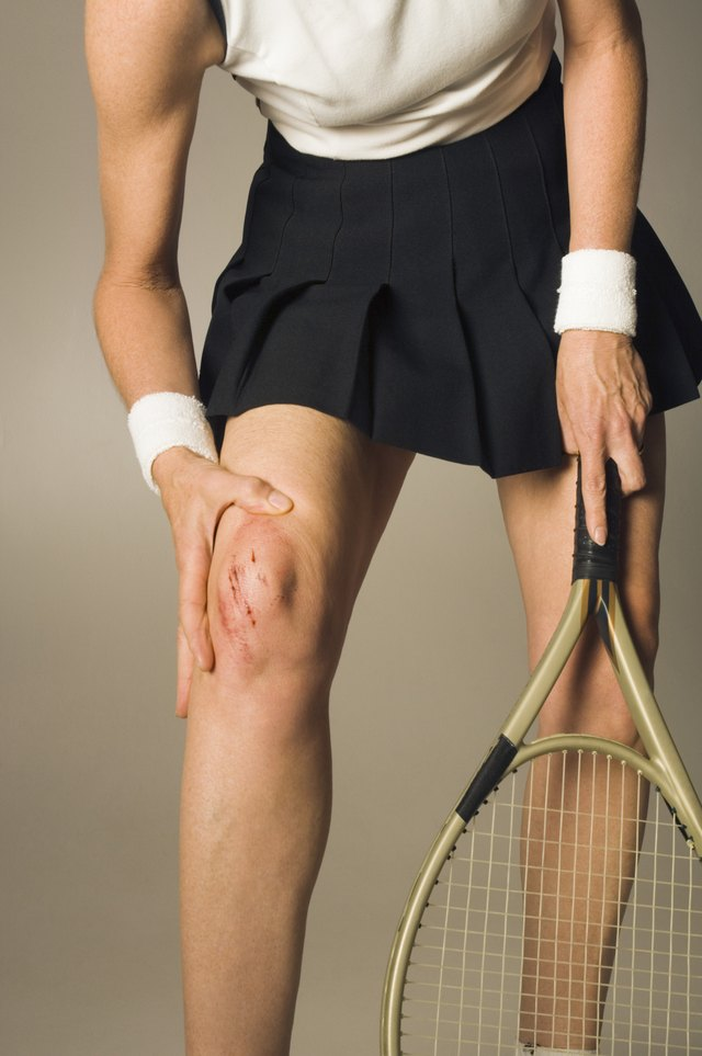 Woman with injured knee