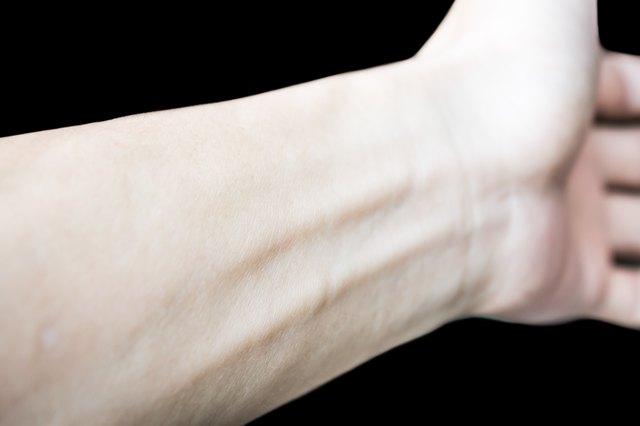 Left arm isolated on black