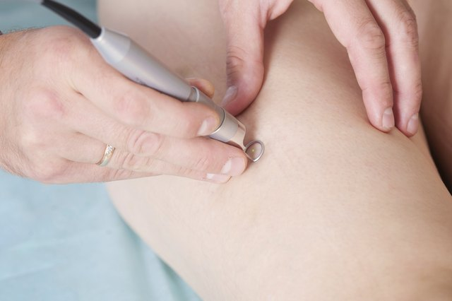 Signs of High Blood Pressure in the Legs