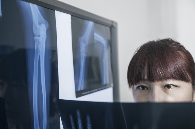 Female doctor looking at x-ray of human bones