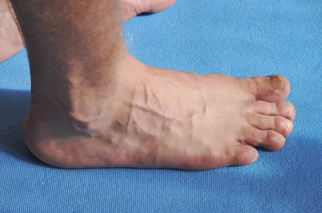 Toenail fungus with varicose veins