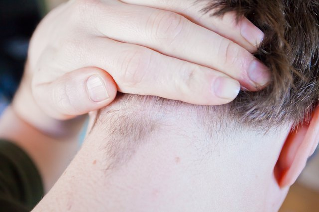 How to Treat Ingrown Hairs on the Scalp