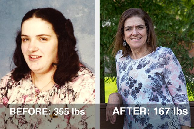 Gail's before and after photos